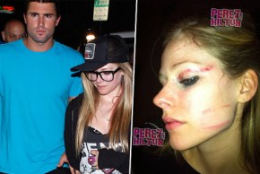 Avril Lavigne избили неизвестные люди